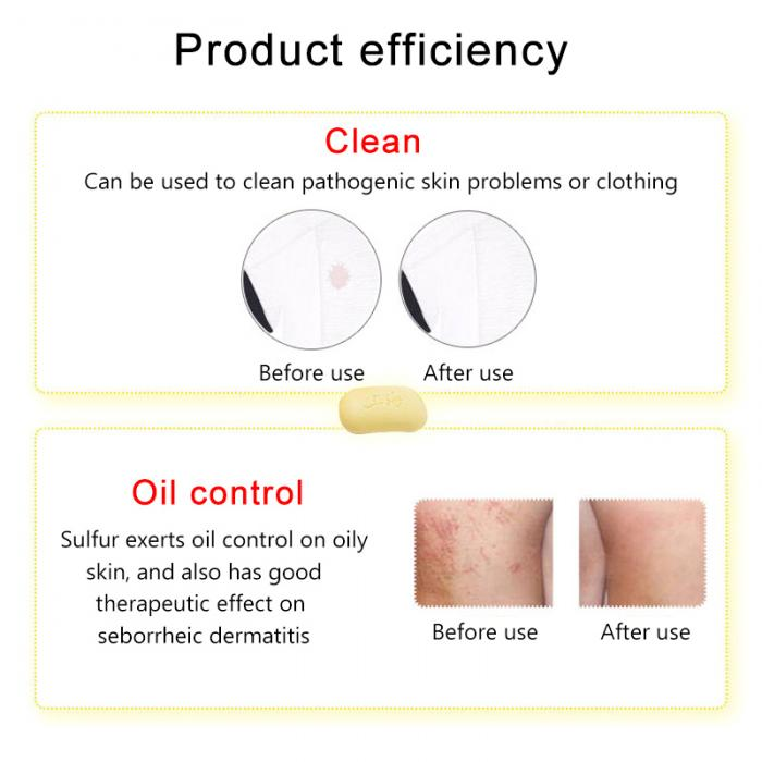 Bath & Shower Cleansers 85g Sulphur Soap Skin Care Dermatitis Fungus Eczema Anti Bacteria Fungus Shower Bath Whitening Soaps Wh998