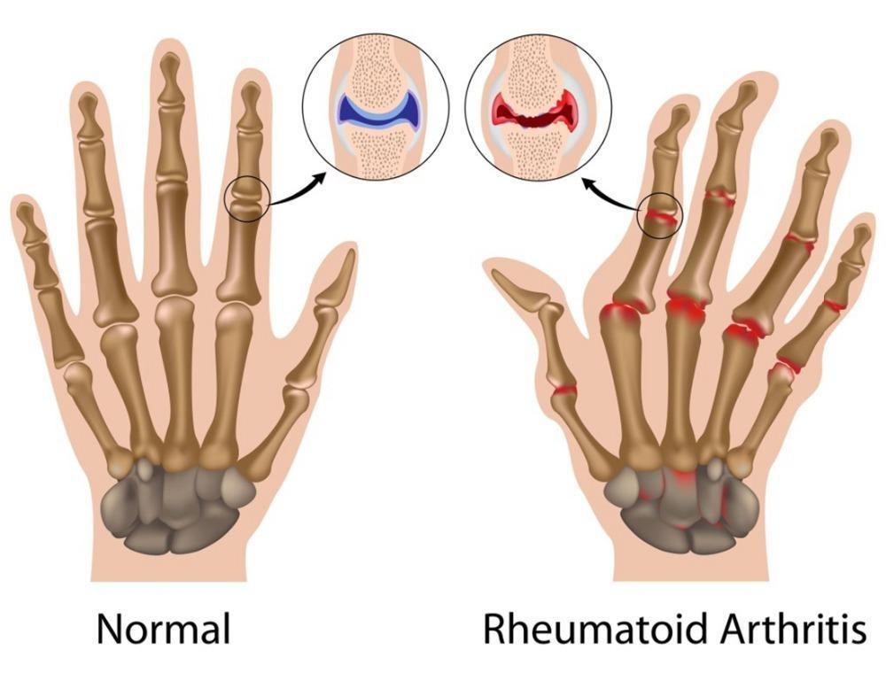 Мужчины медь руки артрит перчатки как видно на тв терапевтический компрессионные черный