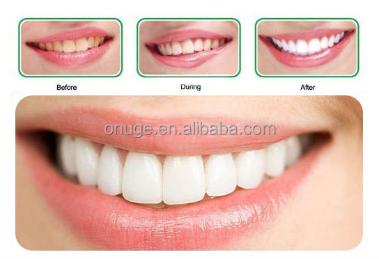 How To Get Onuge Bright White Teeth Whitening Strips
