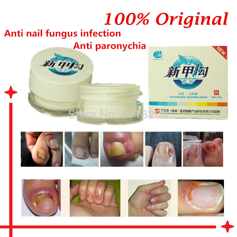 Natural Treatment Paronychia Nail Infection