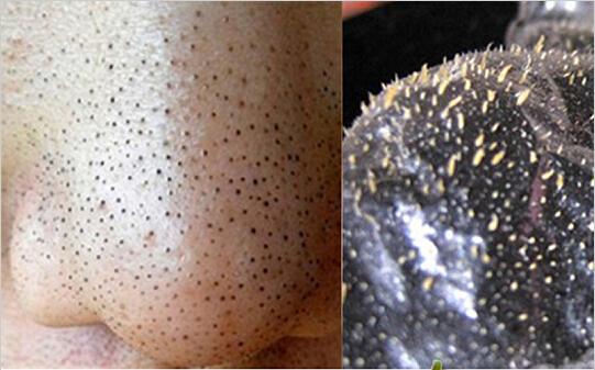 10pcs/Lot Men's Blackhead Remover Deep Cleaning Nose Paste ...