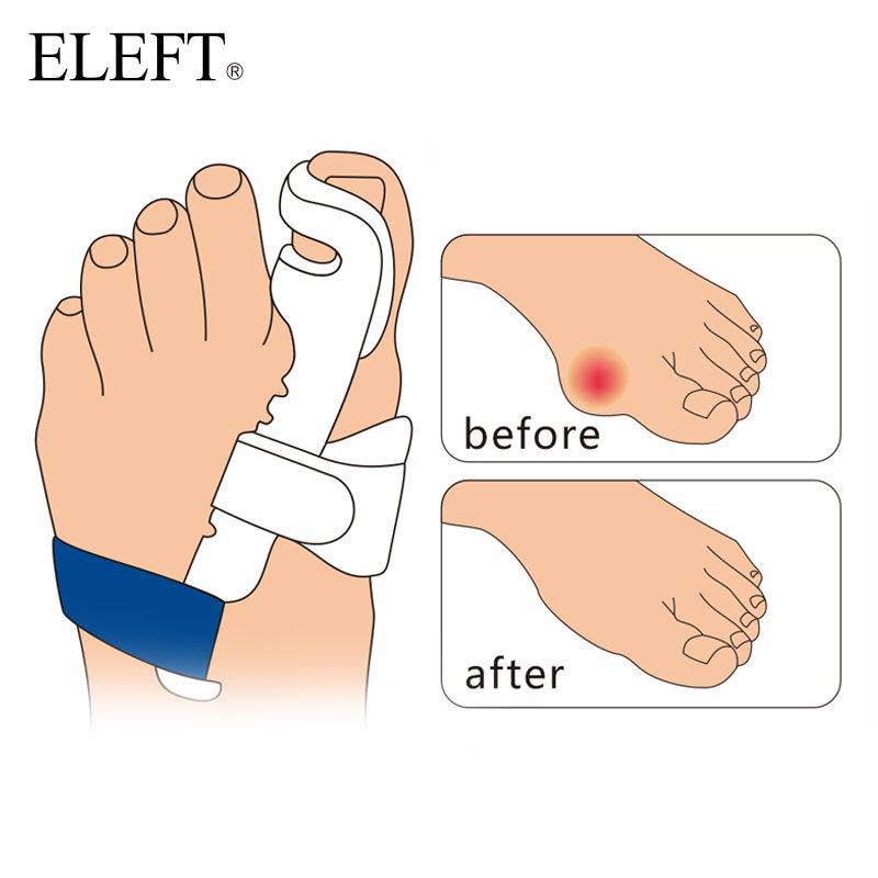 Косточки на ногах сильно болят